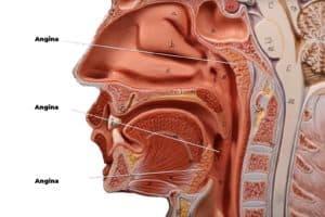 Como diferenciar amigdalitis de faringitis